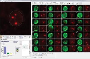 GenASIs FISHView — программное обеспечение для FISH-анализа