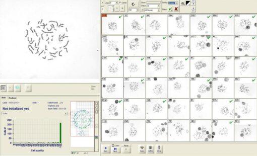 Metaphase Finder для автоматического поиска и анализа метафаз